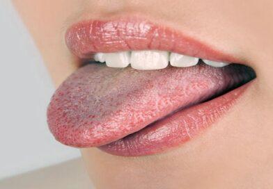 18 migliori trattamenti naturali per la lingua bianca