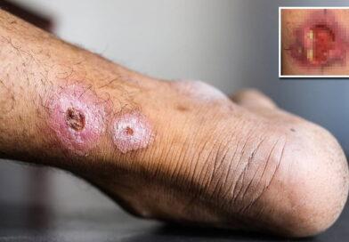 Ulcera tropicale: sintomi e cause