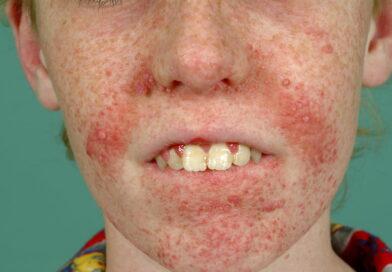 Sclerosi tuberosa – sintomi e cause