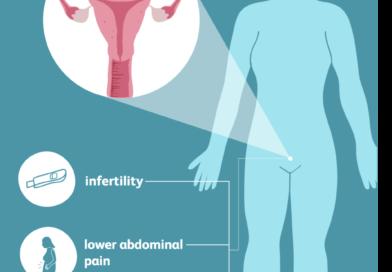 Tube di Falloppio bloccate: alcuni sintomi e cause di base